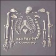 Anatomical World Wide Disarticulated Skeleton